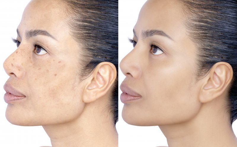 a before and after image of a woman with age spots